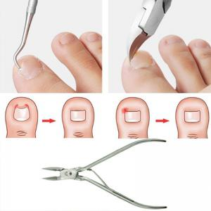 Toenails Correction Pliers + Paronychia Pedicure Pedicure Care Tools -